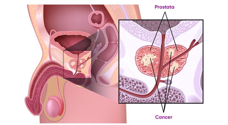 behandling vid prostatacancer